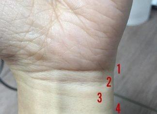 Đường vân cổ tay